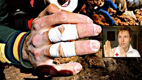 Climbing Related Finger Injuries: Treatment
